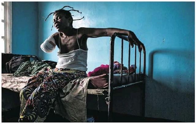 Amputée d'un bras aprés une blessure par balle, une femme se repose sur  son lit dans la Ville de Tshikapa.
