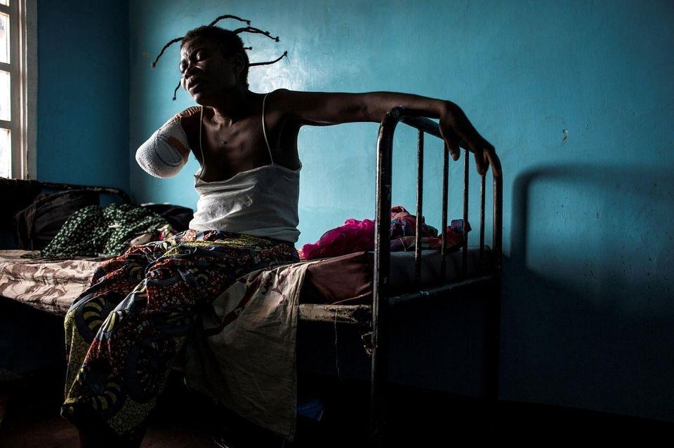Une Congolaise amputée après avoir été blessée dans le Kasaï. Le 23 octobre, à Tshikapa en RDC.